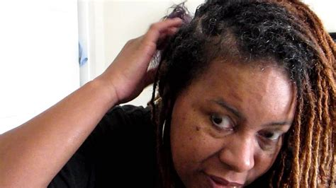 Dry scalp with Dreads or Loc's - YouTube