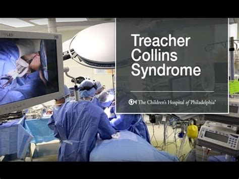 What Is Treacher Collins Syndrome? (9 of 9) - YouTube