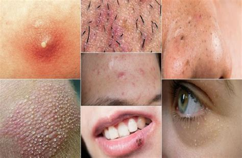 Warning: 2 Types of Zits on the Face You Should Never