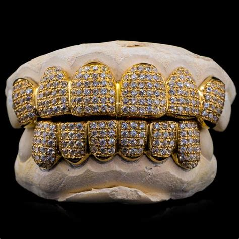 Purchase Solid Gold Fully Bustdown Iced Out Grillz Online