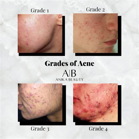 Teresa Paquin Acne and the different grades from one to