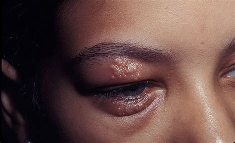 Eye Herpes Pictures – 14 Photos & Images / illnessee