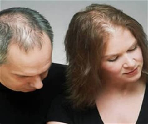 How Do You Know If Hair Loss Is Hereditary?