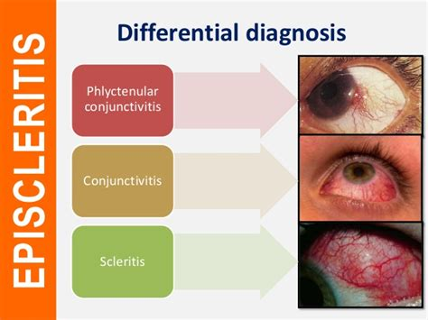 Episcleritis and scleritis
